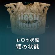 お口の状態顎の状態