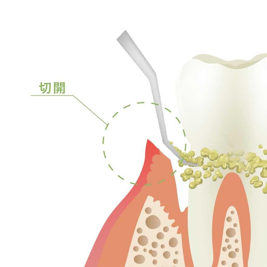 フラップ手術(歯周外科治療)