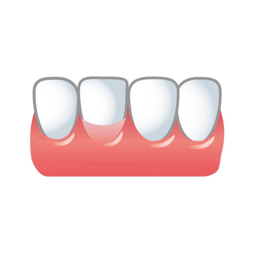 歯茎の再生治療(総合組織移植術)