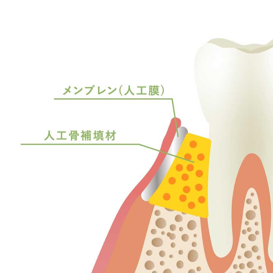 GTR(歯周組織誘導法)